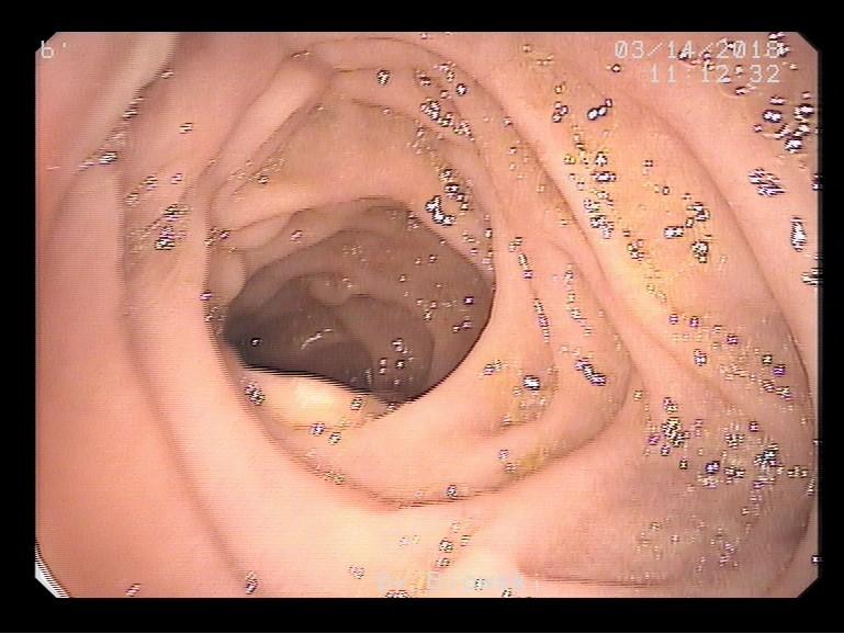 Gastroskopie (Magenspiegelung): Duodenum (Zwölffingerdarm)